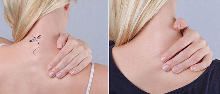 Tattoo Verwijdering Jonishi Skin Care Clinic